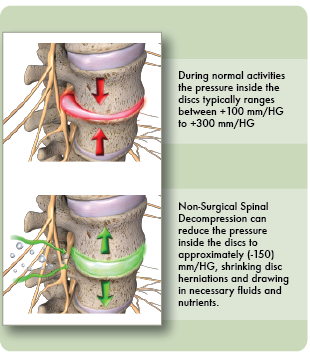 Decompression effects on the disc herniation