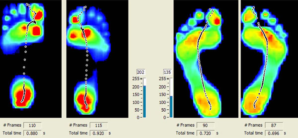 Custom Orthotics foot scan