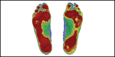 Digital Foot & Gait Scanning
